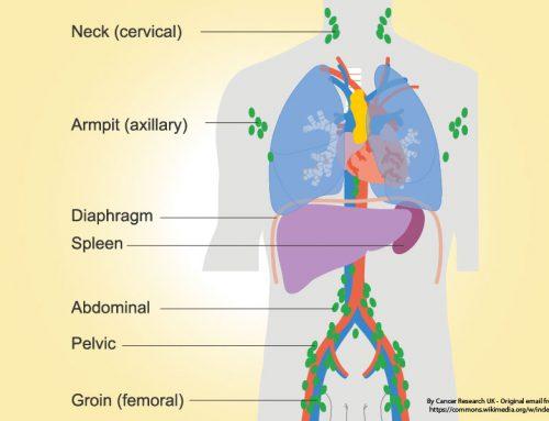 โรคมะเร็งต่อมน้ำเหลือง คืออะไร