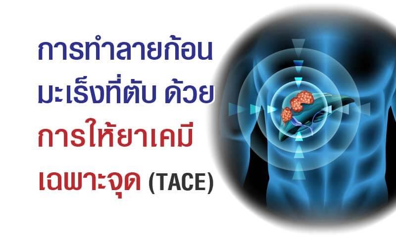 6305-cancer-tace-06