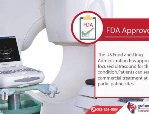 FDA ประกาศรับรองเทคโนโลยีไฮฟูในการรักษาเนื้องอกมดลูก