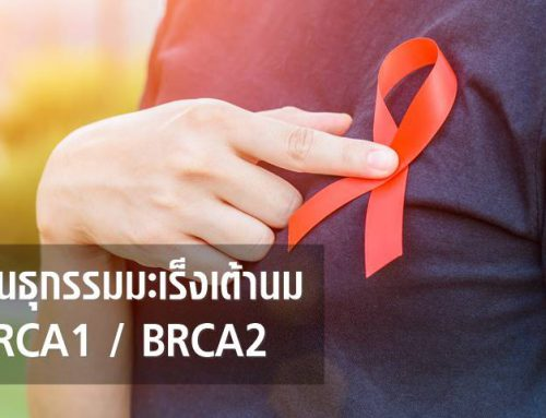พันธุกรรมมะเร็งเต้านม (Germline Mutations in BRCA1 / BRCA2)