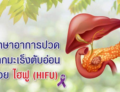 การรักษาอาการปวดจากมะเร็งตับอ่อนด้วยไฮฟู (HIFU)