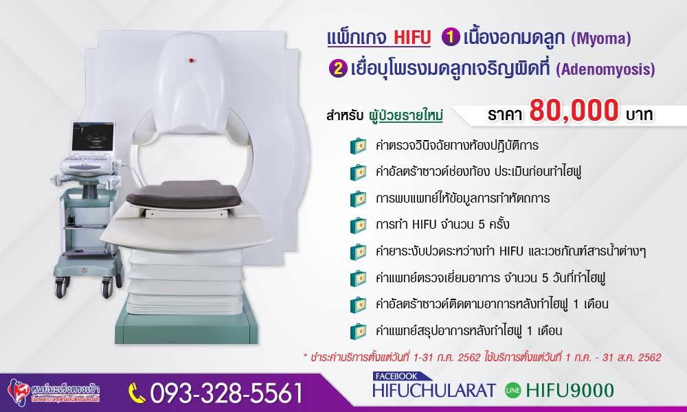 6206-hifu-adeno-myoma
