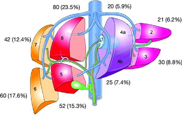 6207-hepatectomy-1