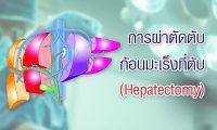 6207-hepatectomy-2
