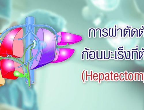 การผ่าตัดตับ ในผู้ป่วยมะเร็งตับ