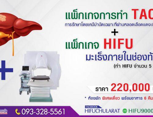 แพ็กเกจ HIFU มะเร็งภายในช่องท้อง และ TACE