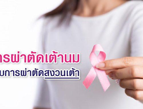 การผ่าตัดเต้านม แบบการผ่าตัดสงวนเต้า (Breast conserving surgery: BCS)