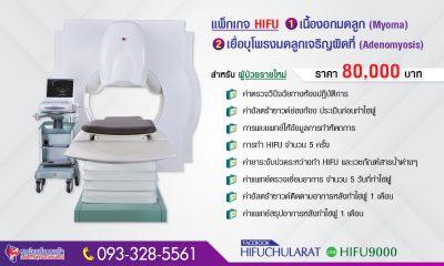 6209-hifu-adeno-myoma