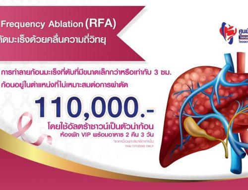 Radio Frequency Ablation (RFA) การผ่าตัดมะเร็งด้วยคลื่นความถี่วิทยุ