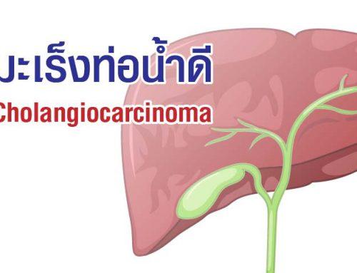 มะเร็งท่อน้ำดี (Cholangiocarcinoma)