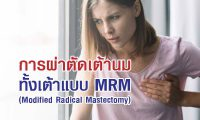 6305-cancer-mrm-1