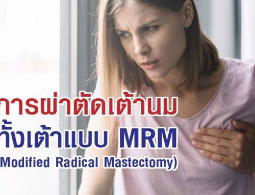 การผ่าตัดเต้านมทั้งเต้าแบบ MRM (Modified Radical Mastectomy)