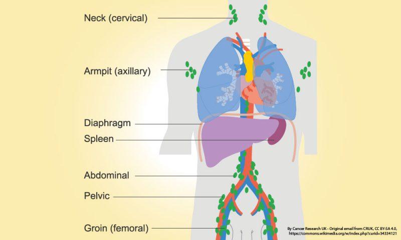 Lymphoma-cancer-1