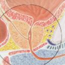 prostate-cancer-1