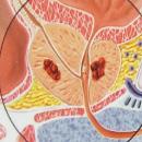 prostate-cancer-2
