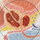 prostate-cancer-3
