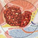 prostate-cancer-4