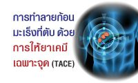 6305-cancer-tace-06