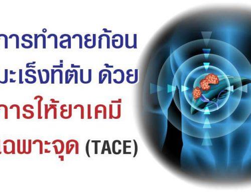 การทำลายก้อนมะเร็งที่ตับด้วยการให้ยาเคมีเฉพาะจุด (TACE: Trans Arterial Chemo Embolization)