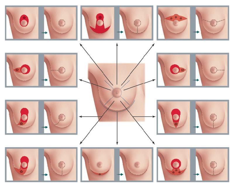 621001-breast-bcs-2