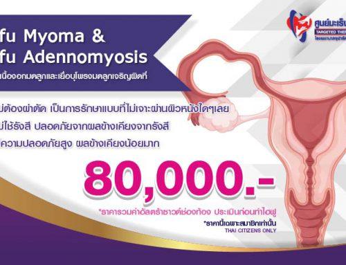Hifu Myoma & Hifu Adenomyosis รักษาเนื้องอกมดลูกและเยื่อบุโพรงมดลูกเจริญผิดที่