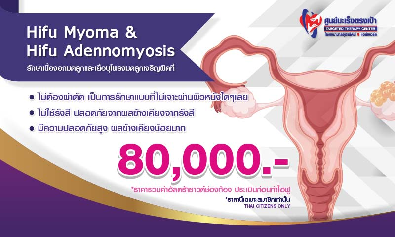 6305-myoma-1